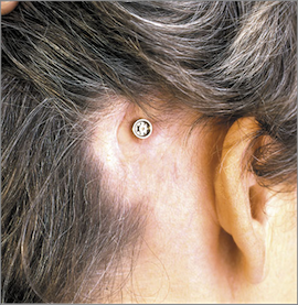 Scar tissue in ear causing pain dating 5