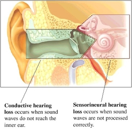 Types of deafness ears hearing uk conductive hearing loss ccuart Image collections